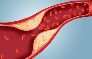 gty_atherosclerosis_cholesterol_plaque_artery_ll_111114_wmain (1)
