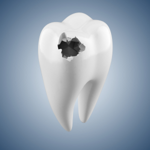 tooth_decay-resized-600